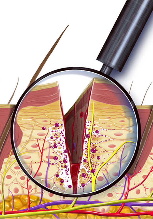 Pain Treatment Illustration